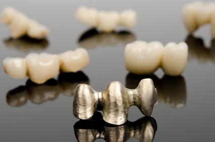 Zahnersatz aus Gold