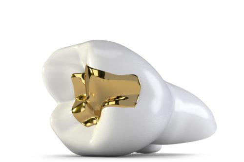Gold in der Zahnversorgung